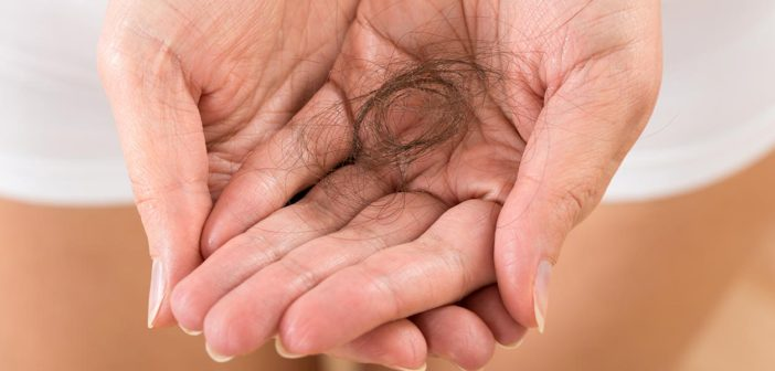 Alopecia-Hair-Loss-Treatment