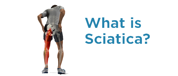 Sciatica-nerve-pain-treatment-and-oil